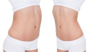 SlimLipo - laserová liposukcia