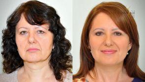 Dokonalý lifting tváre a korekcia viečok na Klinike YES VISAGE